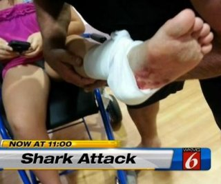 //cdnph.upi.com/sv/em/i/UPI-8301377714211/2013/1/13777160514718/Shark-attack-in-Florida-leaves-11-year-old-victim-with-tooth-souvenir.jpg