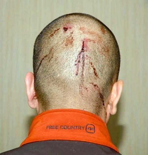 New evidence shows an injured George Zimmerman