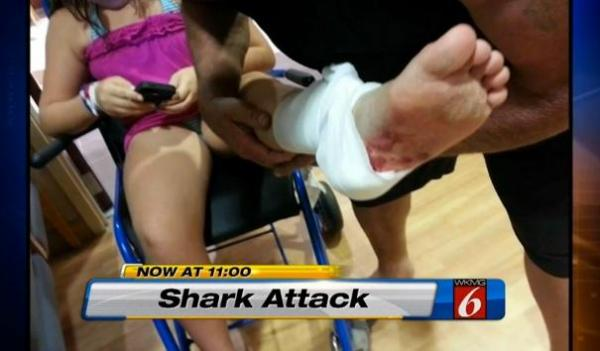Shark attack in Florida leaves 11-year-old victim with tooth souvenir