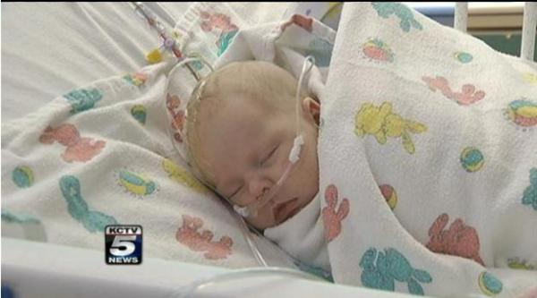 Infant saved by superglue treatment