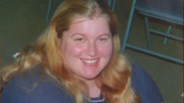 Michigan woman in ICU with flesh-eating bacteria