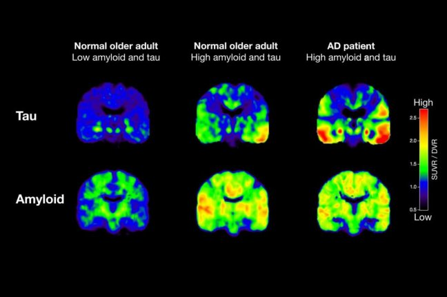 http://www.upi.com/Health_News/2016/03/03/Early-diagnosis-staging-of-Alzheimers-disease-seen-in-PET-scans/1701457010215/