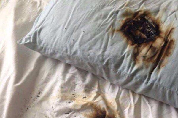 Look: Charging phone caught fire under pillow - UPI com