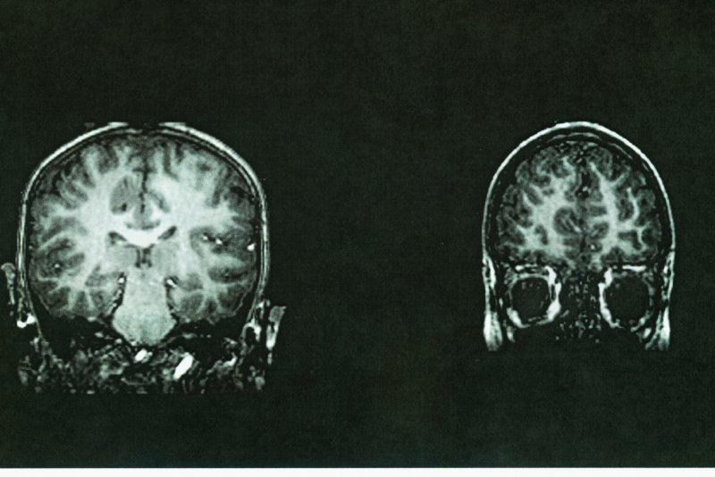 Brain scans reveal whether depressed patients will improve ...