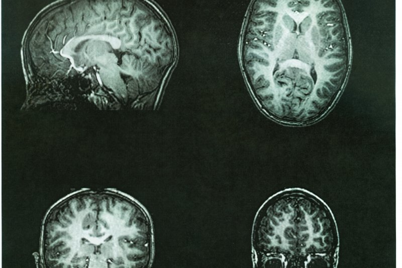 Testosterone Alters Parts Of The Brain Associated With -6421
