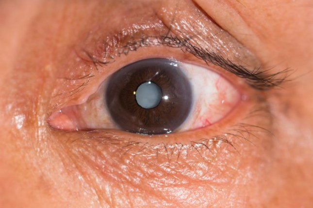 Although treating cataracts with a molecule that is naturally-occurring in the eye was successful in tests, researchers say it may not be the solution for every case. Photo by ARZTSAMUI/Shutterstock