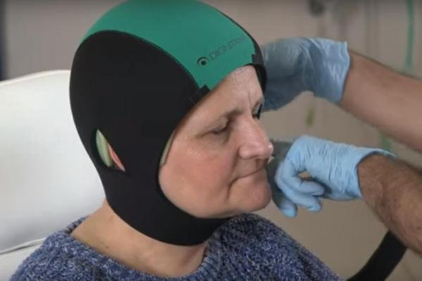 The U.S. Food and Drug Administration expanded use of the DigniCap Cooling System beyond just breast cancer patients. The DigniCap cools the hair follicles to prevent hair loss during chemotherapy. Photo by Dignitana/YouTube
