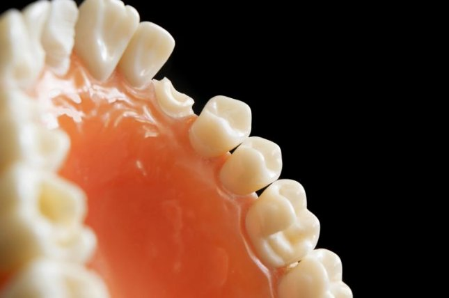 Tooth loss may increase dementia risk in older adults, a new study has found. Photo by huertacs/Pixabay