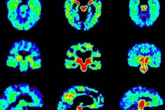 Researchers compared the brain scans of Alzheimer patients (L), retired football players (C) and military personnel (R). Colors toward the red end of the scale indicate a higher concentration of the tracer used to determine the presence of abnormal proteins. Photo courtesy of UCLA