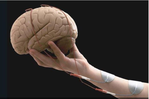Scientists found a dual-therapy approach -- a brain-computer interface and functional electrical stimulation -- helped stroke victims regain use of their arms better than a single therapy. Photo courtesy of Federal Institute of Technology