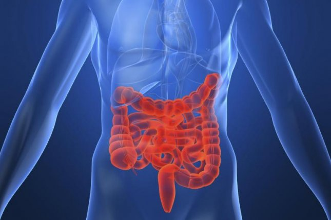 The diagnosis, understanding and management of Crohn's disease may have just received a helping hand from a team of researchers at ASU Biodesign Institute and Mayo Clinic developing a better blood test for the disease. Photo courtesy of Biodesign Institute, Arizona State University