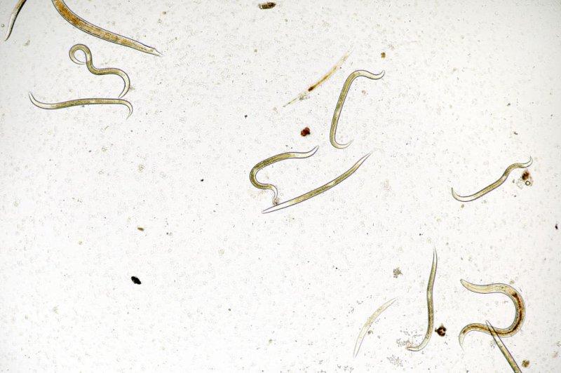 Starvation can affect nematode worms for generations. Photo by D. Kucharski K. Kucharska/Shutterstock