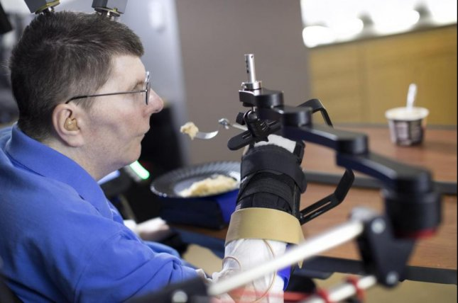 Bill Kochevar, who was paralyzed below his shoulders in a bicycling accident, is believed to be the first person with quadriplegia in the world to have arm and hand movements restored with the help of two temporarily implanted technologies. Photo courtesy Case Western Reserve University