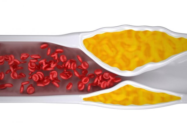An experimental nanoparticle allowed a compound to effectively restore the body's natural ability to break down bad cholesterol to normal. Photo: decade3d - anatomy online/Shutterstock
