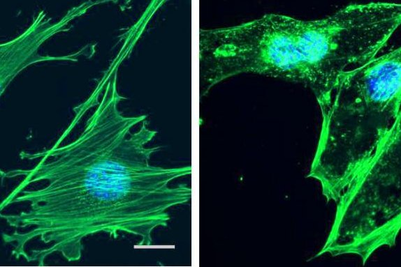 At left, green actin fibers create architecture of the cell. At right, with cytochalasin D added, actin fibers disband and reform in the nuclei, turning the stem cells into bone cells. Photo by the University of North Carolina