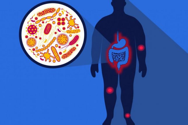 A study found a high-fat diet, such as a cheeseburger and milkshake, has been linked to arthritis and joint pain. Osteoarthritis is a common side effect of obesity. Image courtesy of University of Rochester