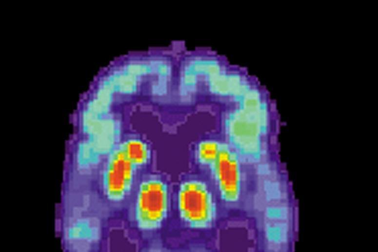 New Alzheimer's drug shows early promise