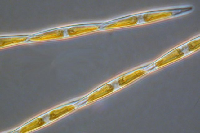 Pseudo-nitzschia algae blooms, which produce a neurotoxin called domoic acid, have become increasingly common along the Pacific Coast. Photo by Rozalind Jester/Florida Southwestern State College