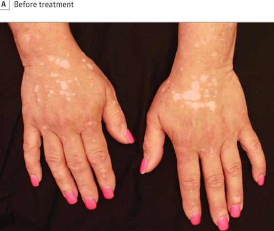 Woman With Vitiligo Dermablend [VIDEO] | Majic 107.5, Atlanta