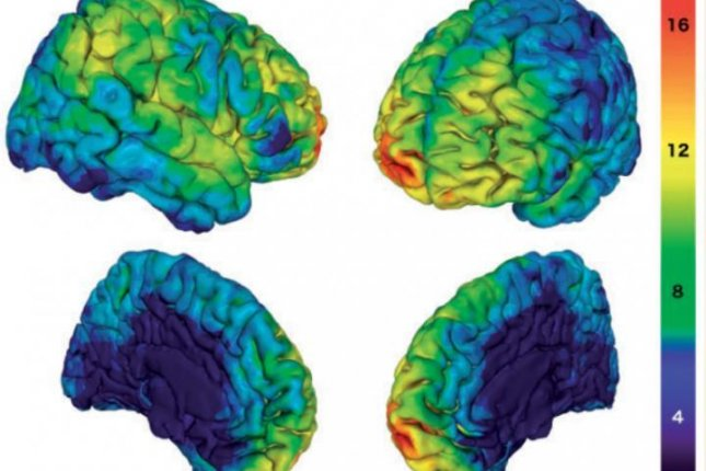 The study of lesions on the brains 94 Vietnam War veterans helped scientists identify neural networks related to altruistic behavior. Photo by Moll et al./Brain