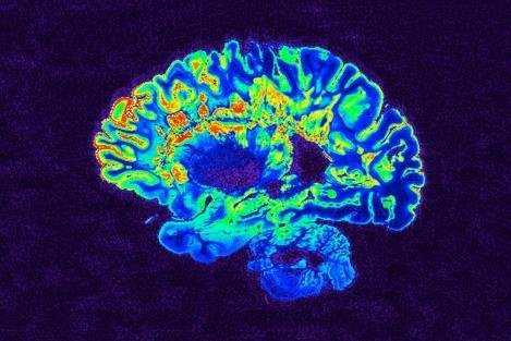 An MRI scan shows the brain of a person with multiple sclerosis. A Phase II clinical trial showed that an antihistamine can restore nervous system function in patients with chronic multiple sclerosis.Photo courtesy of NIH