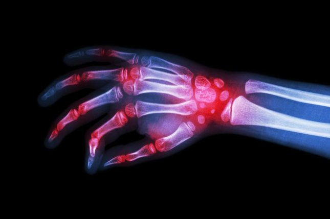 A clinical trial for baricitinib shows its efficacy in reducing the number of joints affected by rheumatoid arthritis in patients for whom other treatments don't work. Fifteen to 20 percent of patients with rheumatoid arthritis, which affects smaller joints such as those in the hands and feet, find decreasing efficacy of drug treatments over time, leaving them with few options for the condition. Photo by Puwadol Jaturawutthichai/Shutterstock