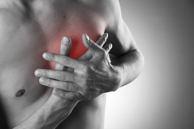 Researchers said some of the damage caused to the heart during a heart attack is actually caused by the immune system attempting to protect the body. Photo by staras/Shutterstock