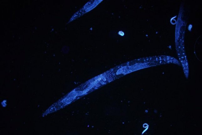 Researchers found the worm species Caenorhabditis elegans was more resilient to environmental stressors as it aged when scientists suppressed a gene linked with longevity. Photo by HPO/Wikimedia Commons