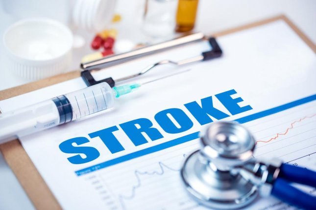 Although newer treatment for mini-strokes cut the risk for secondary stroke or cardiovascular event in half from previous studies, researchers say the results may not reflect all available care because 100 percent of patients were treated at facilities specifically equipped for stroke patients. Photo by bleakstar/Shutterstock