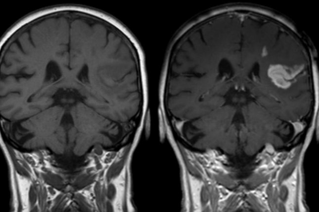 Defect of the blood-brain barrier after stroke shown in MRI (CC/Hellerhoff)