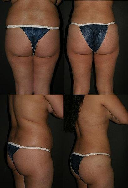 Results of lipoinjection to buttocks assisted with lipectomy of other regions. (Otto J. Placik/CC)