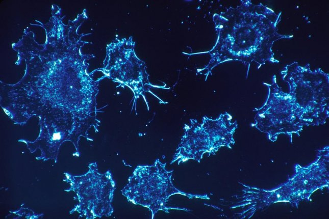 Researchers found an experimental drug inhibits a vital metabolic process in cancer cells' growth and survival, according to trials for the treatment of lung cancer. Photo by skeeze/pixabay