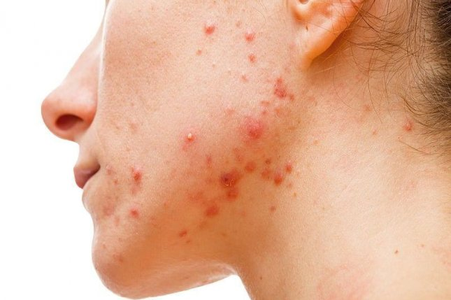 Old acne treatment may lead to better, more effective new