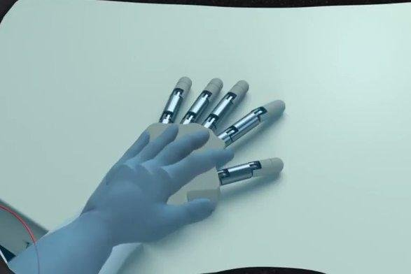 Amputees can be convinced that a prosthetic hand belongs to their own body, according to research. Image courtesy of Federal Institute of Technology in Lausanne/Science Daily