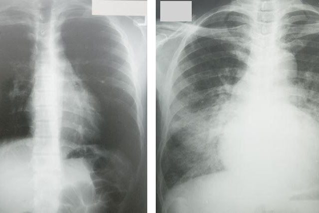 In these two photos of patients at the University of South Florida, the one on the left shows a normal heart the size of a fist and the one on right has dilated cardiomyopathy, showing a massively enlarged heart and water in the lungs, which appears as fluffy white images outside the heart silhouette in the normally dark lung fields. Heart failure is more common in black people than in white people, and researchers have identified the genetic basis of heart failure among them. Photo courtesy of Steve Liggett/USF