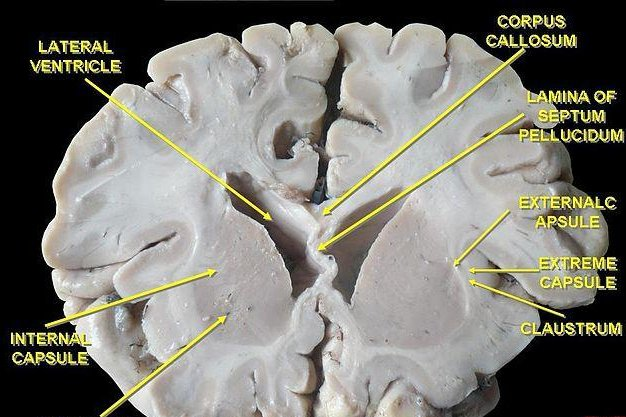 Frontal section of the brain. (CC/Adrian Halga)