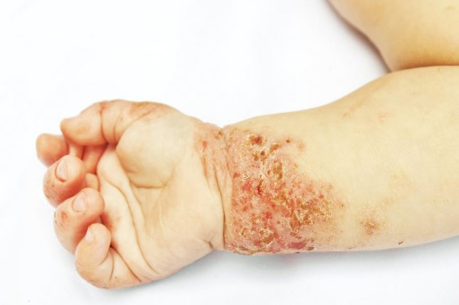 Children are more likely to develop eczema if their mothers had low levels of vitamin B metabolites during pregnancy, according to researchers in England. Photo by Skylines/Shutterstock
