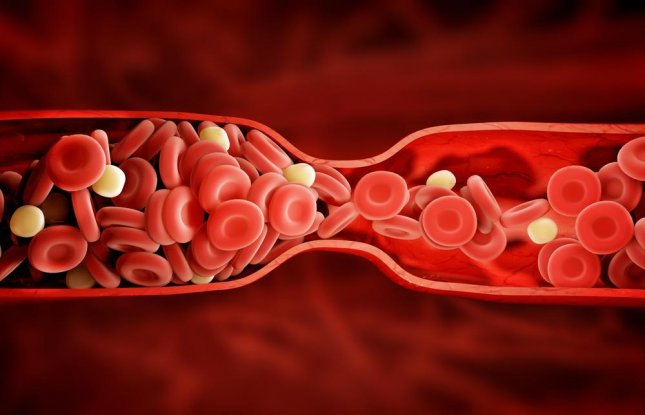 None of the 106 patients who participated in a study on alternative methods of treating blood clots had recurring clots or bleeding during the treatment, which is a significant improvement over the current standard of care. Photo by adike/Shutterstock