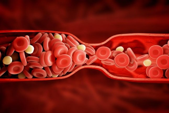 Creating blood flow in a blocked blood vessel allows nanotherapeutics armed with clot-busting drugs to clear blockages. Photo by adike/Shutterstock