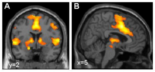 Activation of the brain's fear network, visualized using functional magnetic resonance imaging. Researchers in Germany have identified four variants in the glycine receptor 5 gene that may be risk factors for anxiety disorders. Photo by Dr. Tina Lonsdorf, Systems Neuroscience UKE Hamburg