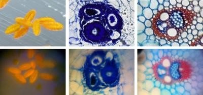 These are stained samples of pollen (left images) and plant stems (right two images). Top row: commercial microscope. Bottom row: cell phone microscope. Credit: Z. J. Smith, K. Chu, A. R. Espenson, M. Rahimzadeh, A. Gryshuk, M. Molinaro, D. M. Dwyre, S. Lane, D. Matthews, S. Wachsmann-Hogiu.