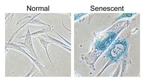 University of Manchester researchers contend an easier way to detect aging within cells will allow medical professionals to repair damaged tissues more easily. Image courtesy Townsend et al./University of Manchester