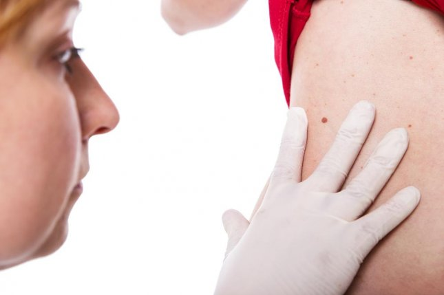 Number of moles on right arm could indicate melanoma risk