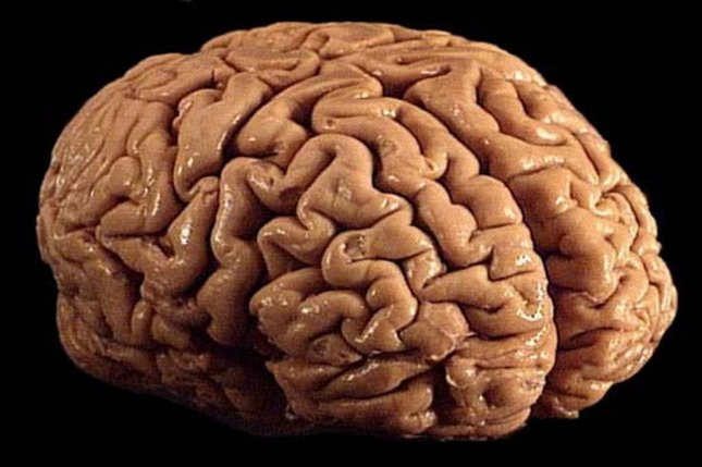 Scientists noted a positive correlation between the number of years spent playing football with brain inflammation indicators. Photo by Allan Ajifo/Wikimedia Commons