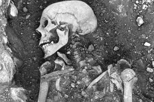Researchers say that samples from the remains of 13 people show that smallpox existed in the Viking Age. Photo by Swedish National Heritage Board/Mühlemann, et. al./Science