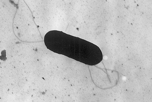 This is an electron micrograph of a listeria monocytogenes bacterium. A study found the food-poisoning infection was shown to respond to an antibiotic. Image by CDC/Wikimedia Commons
