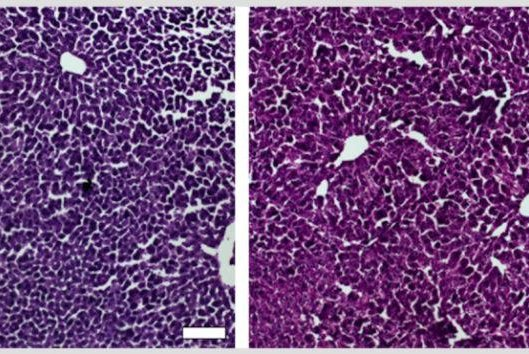 Sections of liver from control mice treated with saline (left) and the CRISPR/Cas9 epigenetic repression system in which cholesterol levels were lowered (right) show generally normal and healthy tissue in both case. Photos courtesy of Duke University School of Medicine
