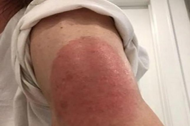 Large rashes near the COVID-19 vaccine injection site were the most commonly reported reactions in a study. Photo courtesy of HealthDay