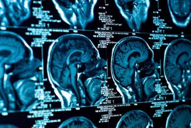 Electric device slows growth of deadly brain tumors
