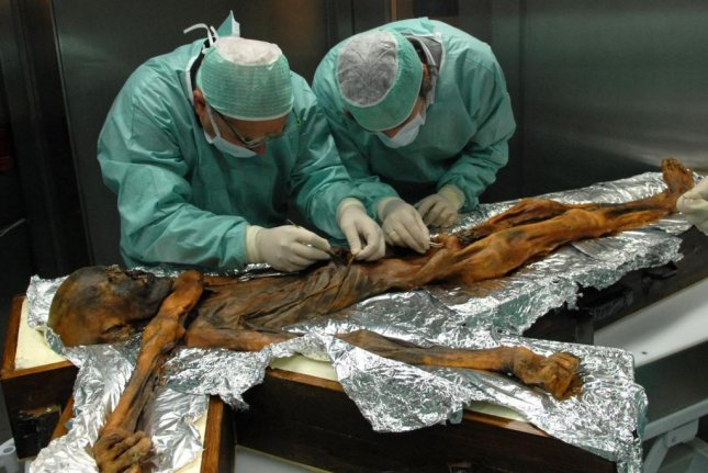 The oldest naturally preserved ice mummy ate a last meal extremely high in fat content, scientists have discovered. Photo courtesy of the South Tyrol Museum of Archaeology